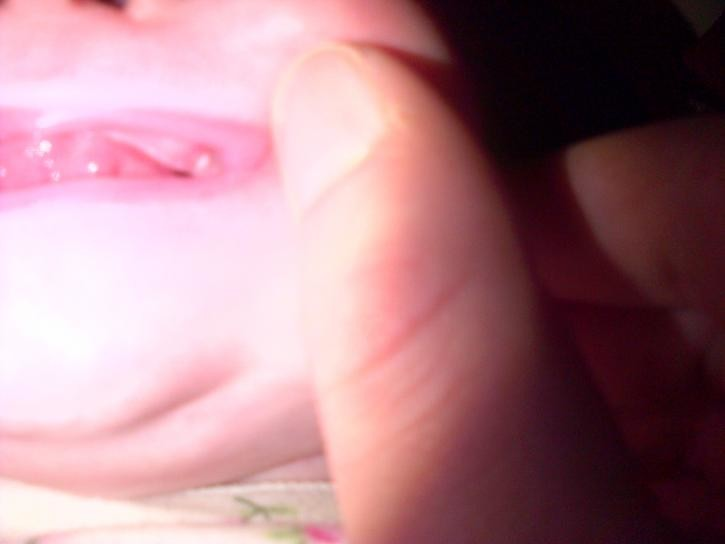 3 month old - is this her tooth or a ucler-tooth.jpg