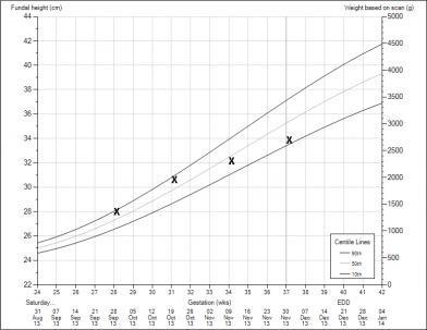 Name Imageuploadedbynetmums1407927812 262794 Jpg Views 10932 Size 19 2 Kb Fundal Height Measurements At 31 Weeks