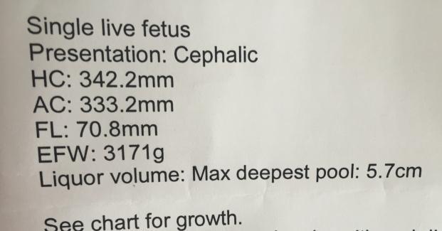 Fetal dating scan