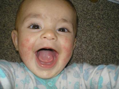 Dead Sea salts for eczema?-969108_130258850513709_1723509651_n.jpg